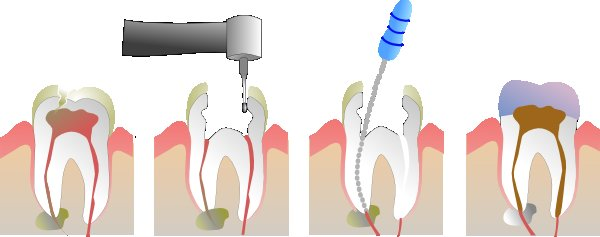 Root Canal Options