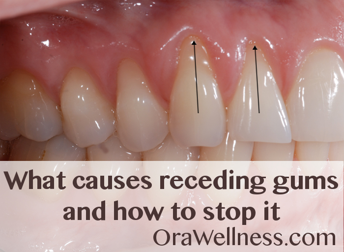What causes receding gums and how to stop it - OraWellness